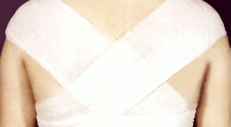 Х-образная повязка