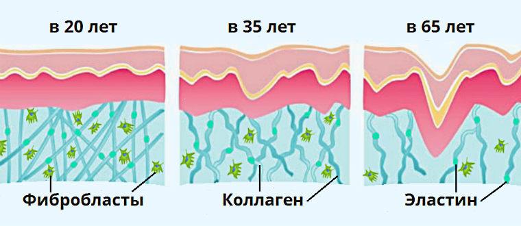Уменьшение количества коллагена, эластина и фибробластов