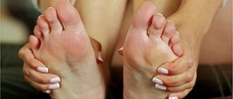 Почему горят ступни ног
