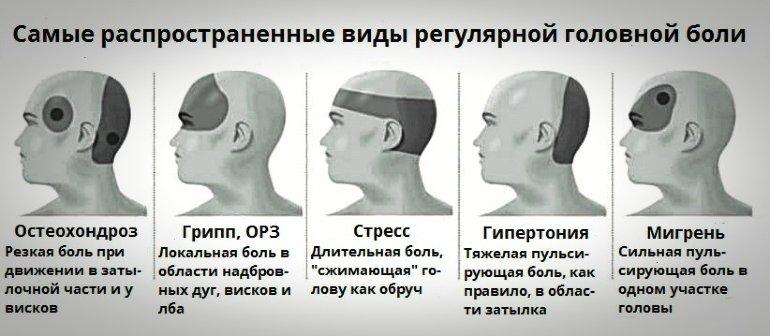 Основные виды головной боли